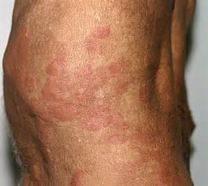 Wells Syndrome Eosinophilic Cellulitis