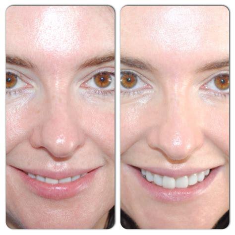 Darphin Cc Cream Instant Multi Benefit Care Spf35 Review
