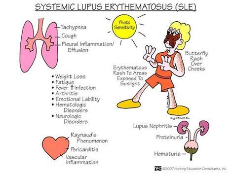 nursing mnemonics and tips systemic lupus erythmatosus