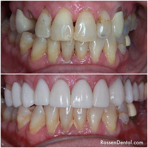dental bridge  colony tx david  rossen dds