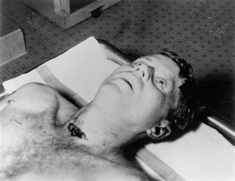 john  kennedy autopsy photo  weird picture archive