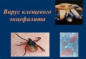 Вакцинация от клещевого энцефалита при псориазе