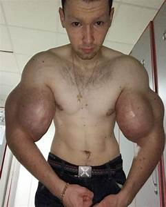 Bodybuilder Says He Has Biggest Arms In Russia After Injecting Oil Into Biceps