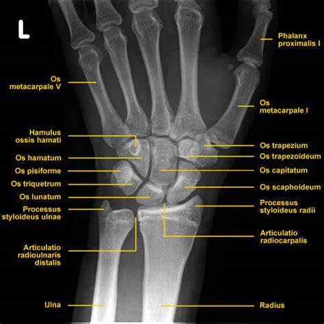 learning to print bild 1 8 röntgen handgelenk dp