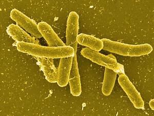 Public Health W... Salmonella