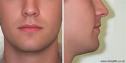 Chin Lips Animation Lip Upper Lift Male