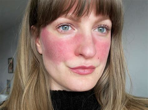 11 People Describe What It's Really Like To Have Rosacea