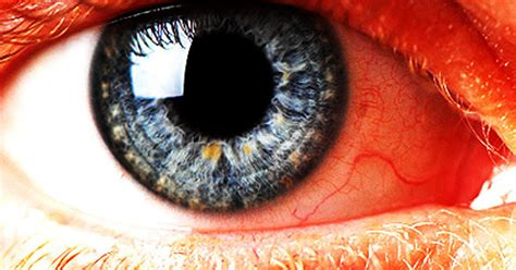 eye eyes blood things scary facts ring cholesterol colors around cornea say health gray very blindness