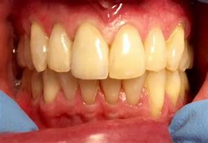 root canals   Dr. Gentry