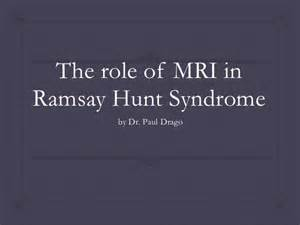 The role of mri in ramsay hunt syndrome Ramsay Hunt syndrome
