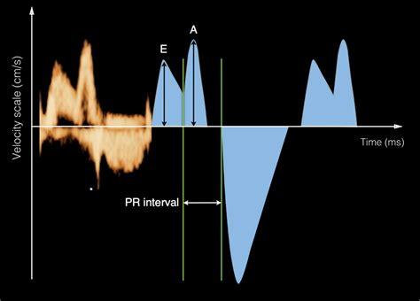 Pulsed Doppler in Fetal Echocardiography