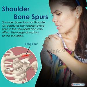 Shoulder Bone Spurs: Treatment, Symptoms, Causes, Diagnosis  Shoulder Pain Bone tumors