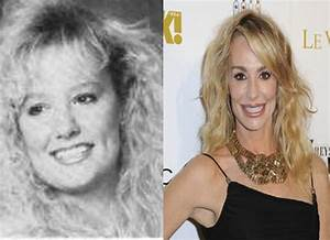 Taylor Armstrong Before And After Plastic Surgery Botox