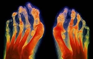 Уколы в коленный сустав при артрозе препараты отзывы
