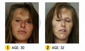 Shocking images show the horrific effects of drug abuse ...