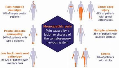 Pain Neuropathic Types Key Symptoms Treatment Diagnosis