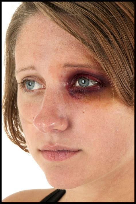 cover  bruise  makeup makeup