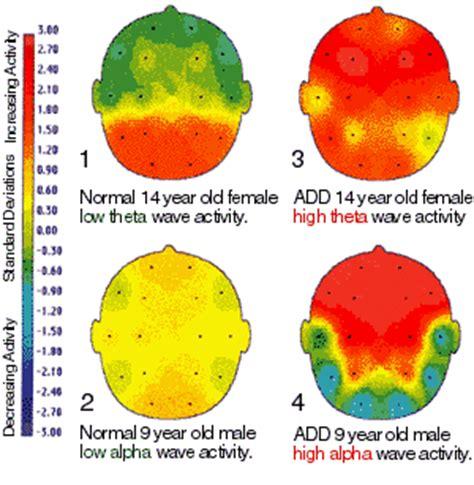 attention deficit disorder symptoms  diagnosis