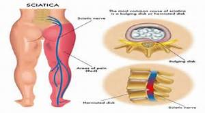 Cure Sciatica With Natural Therapies - Natural Cures And Home Remedies Natural therapies