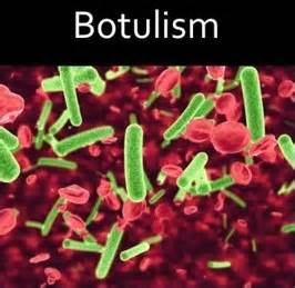 Wound Botulism Related Keywords & Suggestions - Wound Botulism Long ...  Plague Botulism