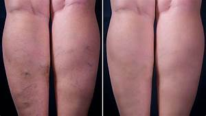 Varicose veins: Causes and how to treat them - 9Coach