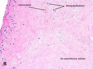 American Urological Association - Anorchidism
