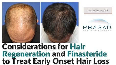 Considerations for Finasteride, and Hair Regeneration to