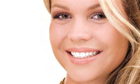 Opulence Teeth Whitening 20 by Smiles Express Up To 38 Beverly Ca
