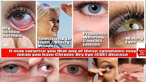 red eye painful sensitivity to light red painful eyes sensitive to light decoratingspecial com
