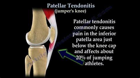 patellar tendonitis jumpers knee