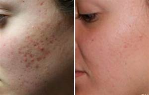 Common Acne Scars And How To Get Rid Of Them