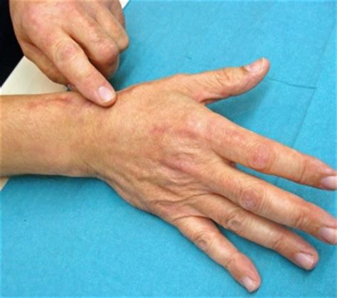 saddle joint arthrosis hand arm