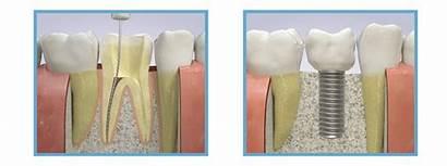 Implant Root Canal Dental Implants Endodontic Endo