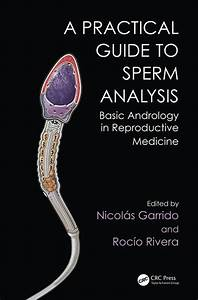 Practical Guide To Sperm Analysis U201a Basic Andrology In