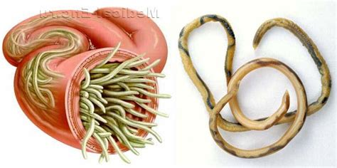 Ascariasis Roundworm