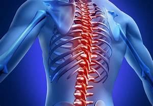 Остеохондроз межпозвоночная грыжа лечение и упражнения