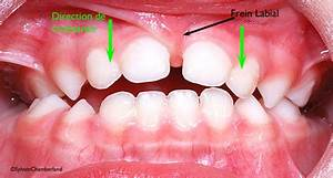 Frenulums and frenectomy - Dr Sylvain Chamberland ...