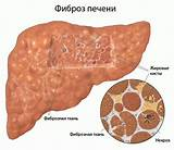 Фиброз печени 2 степени препараты