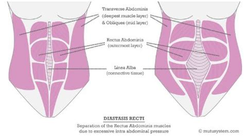 high tone pelvic floor dysfunction 1000 ideas about diastasis recti on diastasis