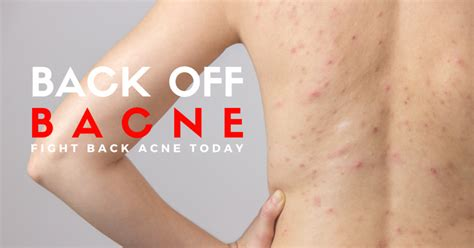 acne treatment singapore apax medical aesthetics