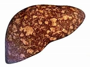 Лекарства для жирового гепатоза печени