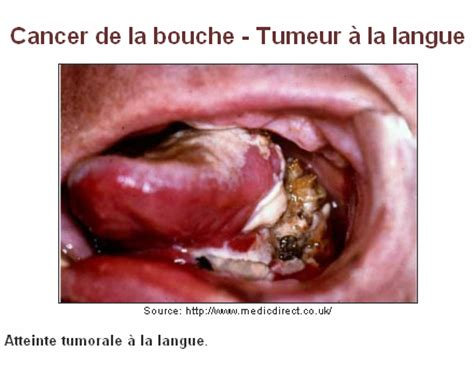 maladies bucco dentaires stop tabac ch