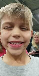 Breanna Pearson On Twitter   U0026quot When You Lose Your 1st Tooth