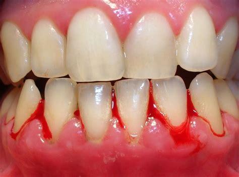 relacion entre la periodontitis  la gingivitis personas