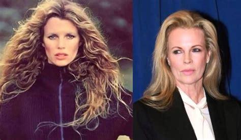 Kim Basinger Excellent Plastic Surgery For A Beauty Queen