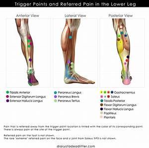 Leg Trigger Points