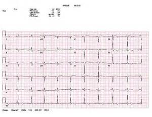 Abnormal EKG Rhythm Interpretation