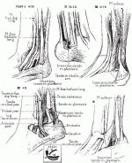 Diagnostic Imaging Techniques of the Foot and Ankle ...