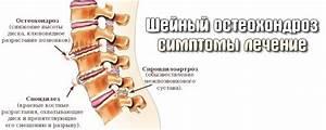 Остеохондроз шейного отдела позвоночника лечение в туле