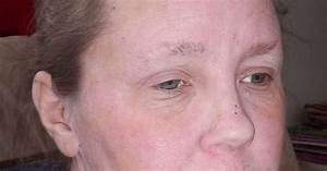 Stopping Topical Steroids   12 5 Month Update Pictures